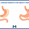 Bariatric surgery benefits for obesity management
